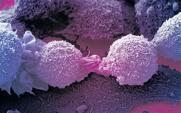 AstraZeneca Ovarian Cancer Drug Succeeds in Trial (AZN)